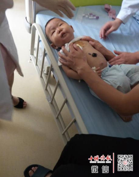 十堰妈妈给半岁儿子洗澡时发现异常...噩梦开始了!救救孩子