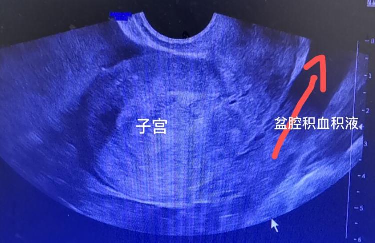 22岁备孕女子忽视生理期,流了全身五分之四的血险丧命