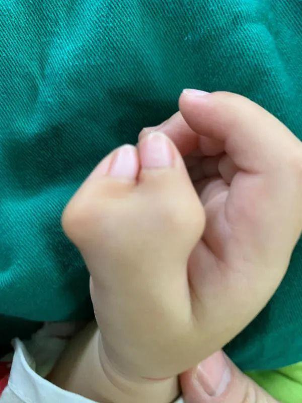 """男童拇指长得似""""蟹钳"""",妈妈难以置信!奶奶一句话道出真相……"""