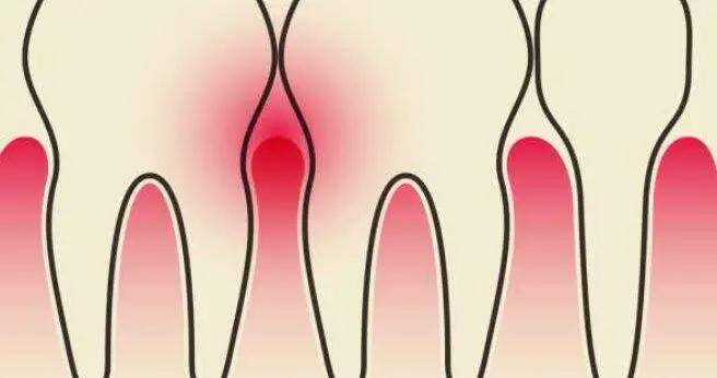 英国新研究:多吃蔬果,少得牙周炎