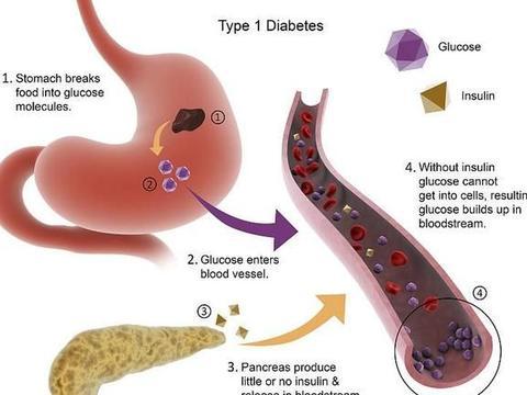 研究糖尿病36年的89岁朱晓东院士:血糖高的人,家中这物要多吃