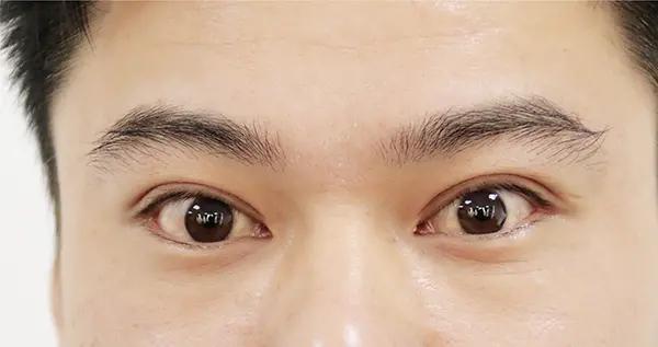 近视的人,要预防视网膜脱落,哪些事情不宜做?提前了解