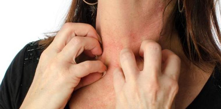 如何预防过敏性皮炎?