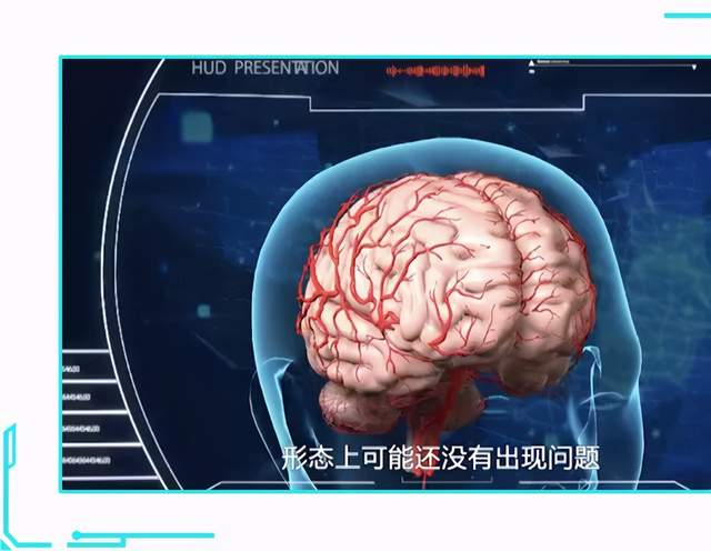 """记忆力下降一定要警惕!这种""""痴呆""""高发于中年人群"""