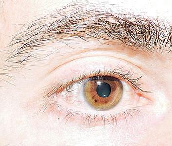 球后视神经炎前期症状