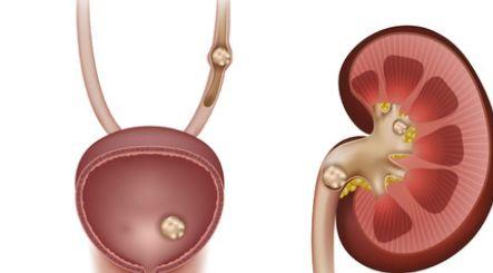 肾结石除了尿血的情况,还会出现其他的症状吗?会!