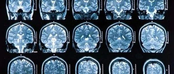 老年痴呆症可以用药物治疗?FDA此次批准的新药,为何引起争议?