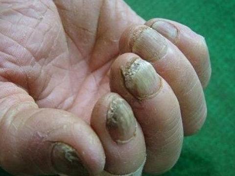 年纪轻轻的我得了灰指甲