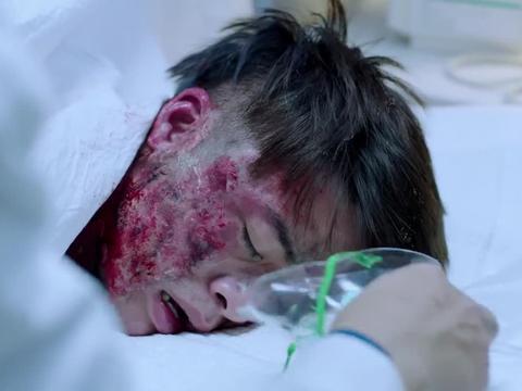 医院接诊爆炸伤患,主任累到手抽筋,医生一眼看出不对