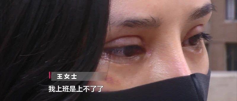 贵阳女子想要大眼去整形,不料留下两道大疤!当事人:医生竟在手术室吃槟榔