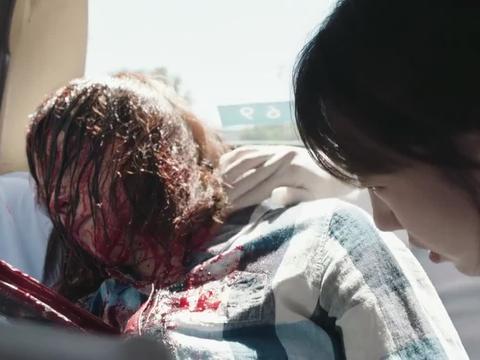 出租车乘客身中钢筋昏迷,医生赶来相救,谁想发现是自己妈妈