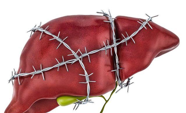 喝小米粥对肝脏不好?医生直言:想要肝脏健康,尽量多吃1素