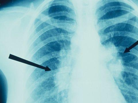 如果患有肺结节,要注意远离这4种食物,对肺部有益,可缓解结节