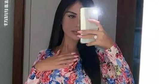 巴西模特从17岁开始整容,为超越卡戴珊已花380万
