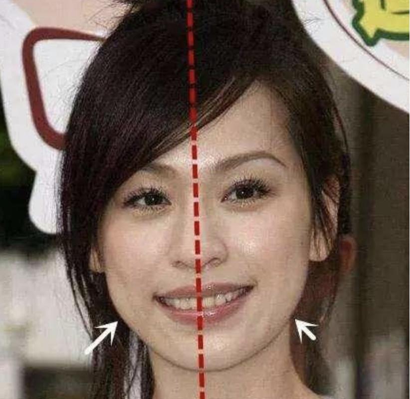 王心凌拍照只拍左脸为什么不拍右脸 王心凌的脸怎么回事那么歪