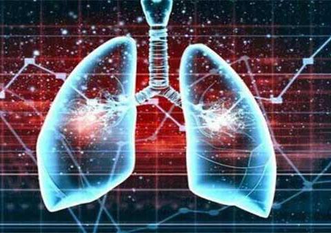 肺癌疗法越来越多,如何做出正确选择?TRI精准预测治疗有效性