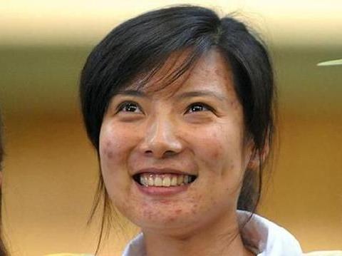 射击奥运冠军杜丽,如今面部痘痘消失不见,39岁宛如少女