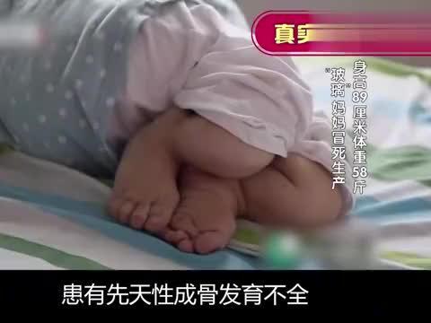 """""""玻璃人""""胡陆勇闯生死劫,剖宫产危险重重,宝宝出生仅2斤8两"""