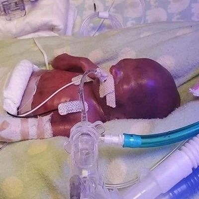 怀孕21周早产131天出生!他被判定存活率为0,现在一岁了!
