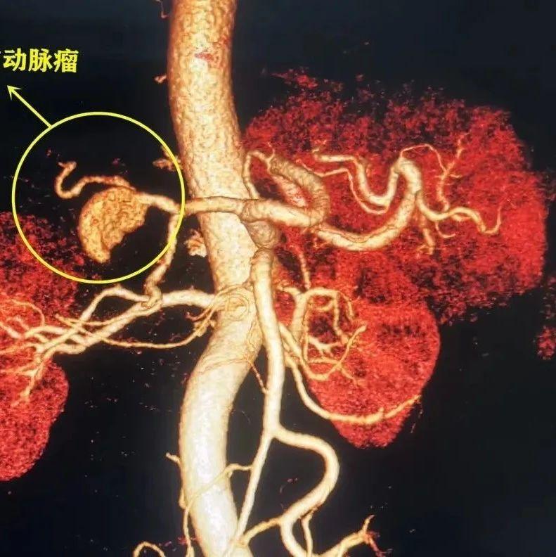 """老人腹痛不止,原是肝脏血管鼓了个随时可能炸裂的""""包"""""""