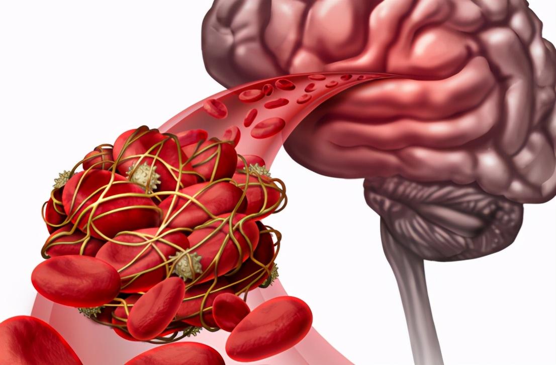 血脂高的人要多吃素食?未必!少碰3种素食,反而有利于控制血脂