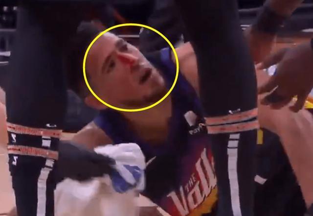 布克鼻梁被撞崴,鲜血直流倒地不起,贝弗利撞人额头也出血