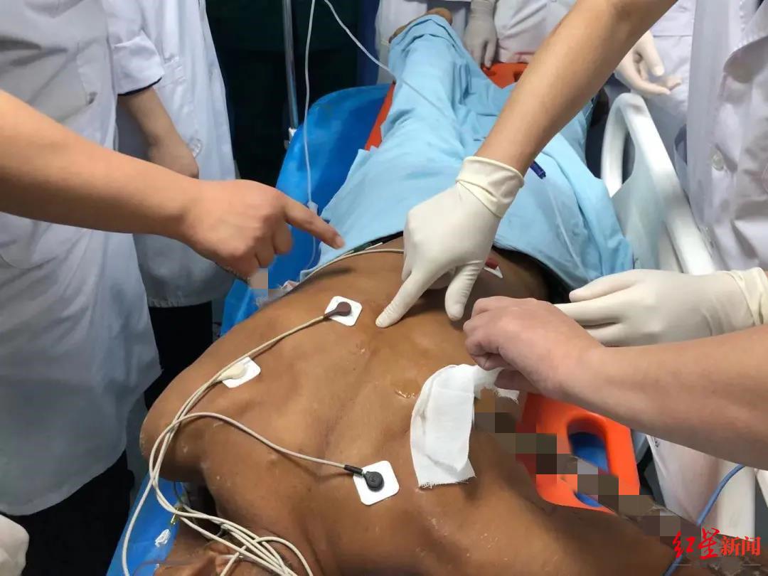 男子在工地受伤,1.2米长钢筋贯穿身体 医护紧急手术取出