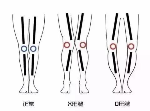 3种难看的腿型,你是哪一种?矫正问题腿型不是小事