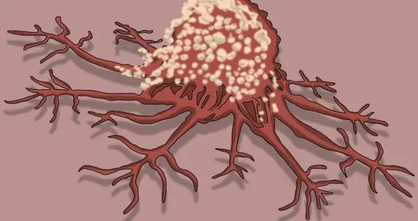 人人都有癌细胞,为啥不是人人患癌?因为做了4件癌细胞害怕的事