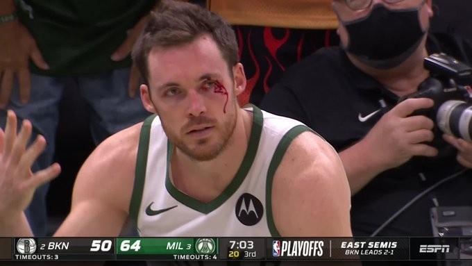 康诺顿谈眼角被哈里斯打出血:目前是胶水粘着 可能缝针