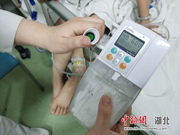 """""""止痛""""开关24小时握在手里 患者燃治病信心"""