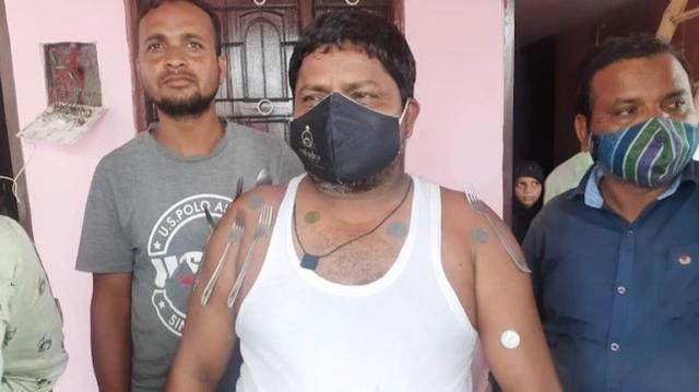 """印度男子:接种新冠疫苗后产生""""磁力"""",刀叉硬币可粘身上"""