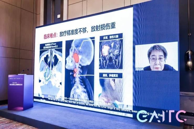 中山大学肿瘤医院与医渡云合作,利用AI提升鼻咽癌临床诊疗与科研能力