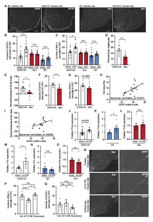 Cell Reports:肠道微生物群影响神经炎症和肥胖的最新机制
