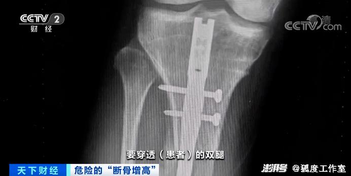 为增高自断双腿,为瘦腿切断小腿神经,这些人到底怎么了?