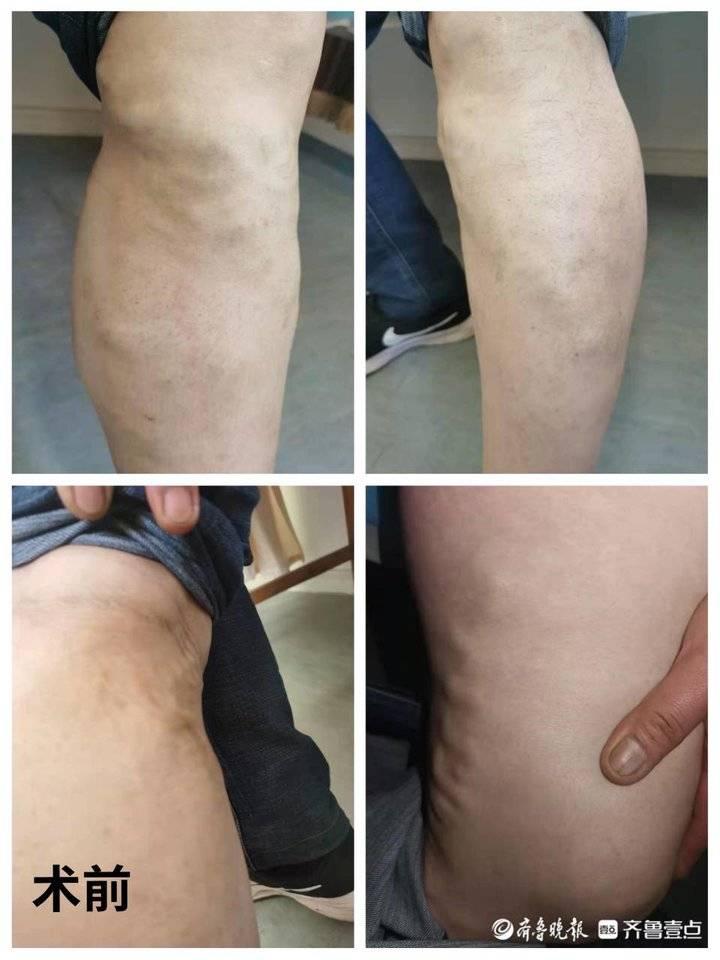 泰安市中医医院:双腿患有静脉曲张,一次住院全部治愈