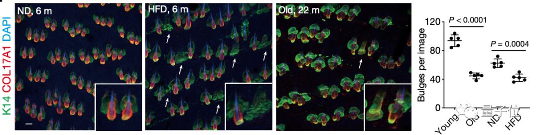 上图为小鼠的毛囊图像,箭头所指出的是没有检测到含HFSCs凸起的毛囊。