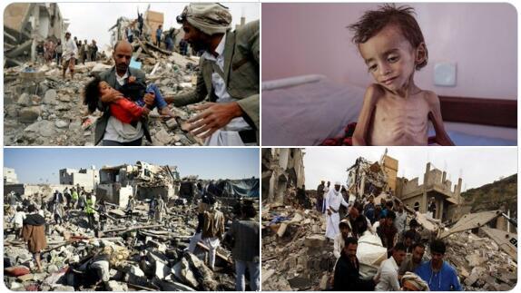 也门冲突造成人道主义不幸。(图截自伊朗外长社交媒体账户)