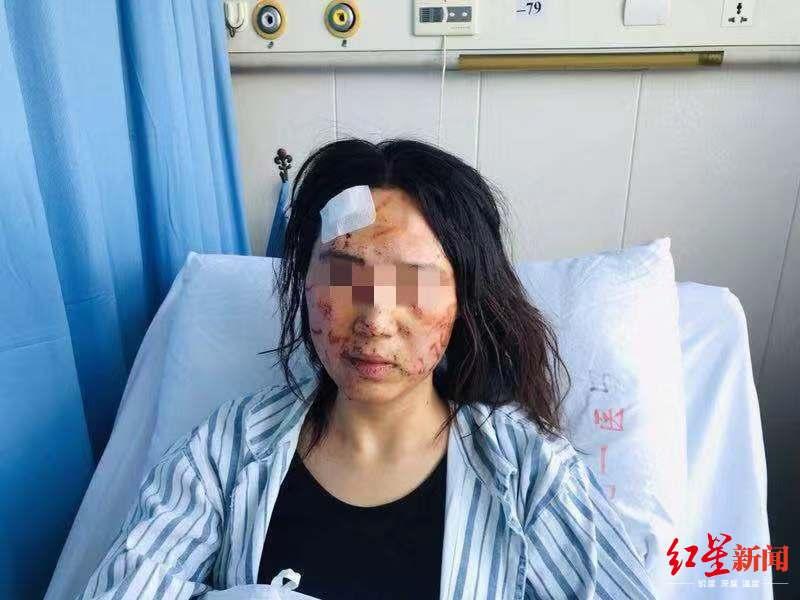 ↑孙某脸上有多处伤痕
