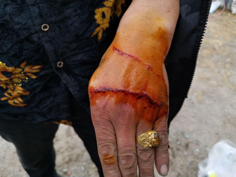 参与救护的护林员被雪豹抓伤。 胡杰 图