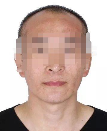 6日0—12时贵州新增新冠病毒肺炎确诊病例2例