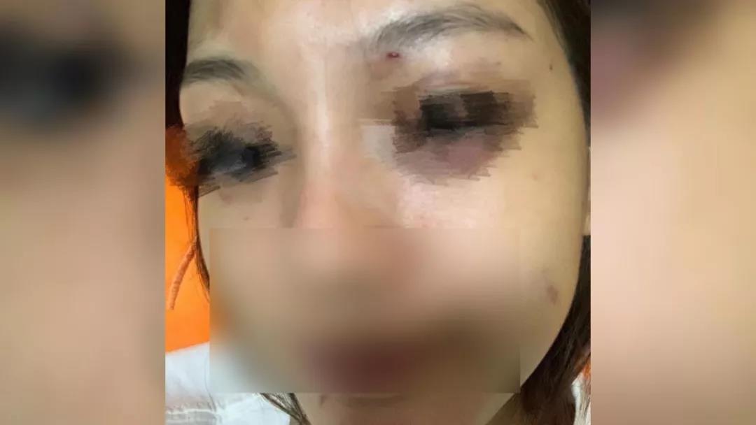 王女士被男友打至双眼肿胀淤黑