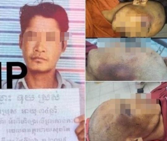 """男子在柬埔寨狱中疑被毒打致死 当地政府称""""酒瘾发作而死"""""""
