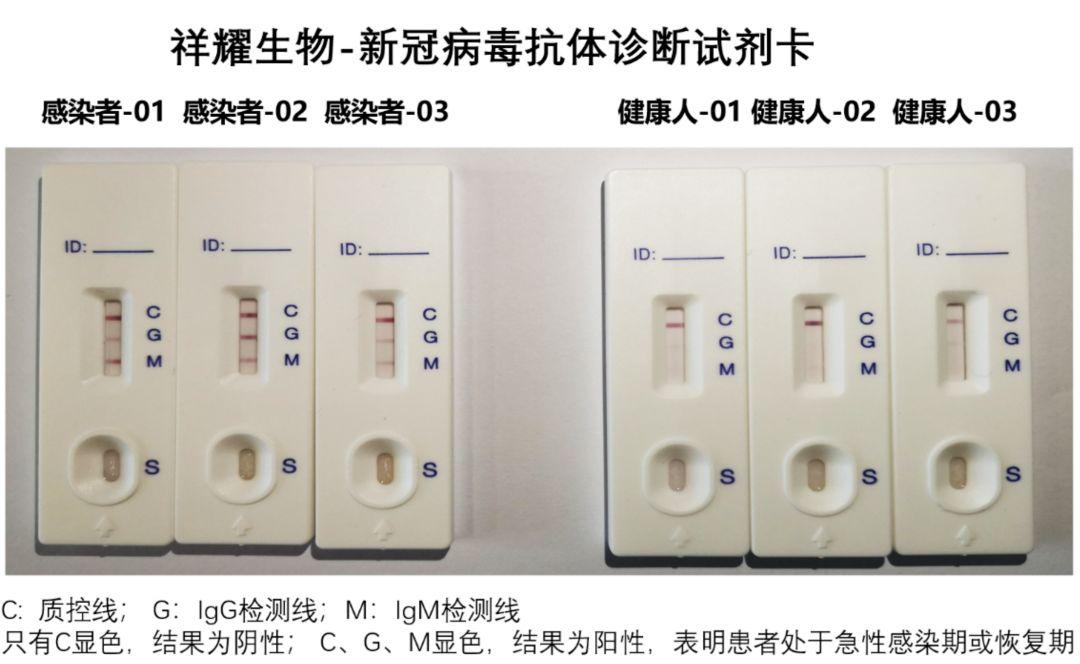 世贸组织总部发现新冠肺炎病例所有会议紧急暂停10天
