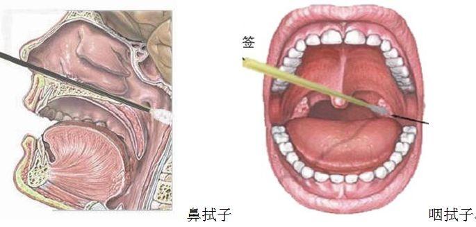 新冠病毒核酸检测标本:鼻咽拭子的采样不同于口咽拭