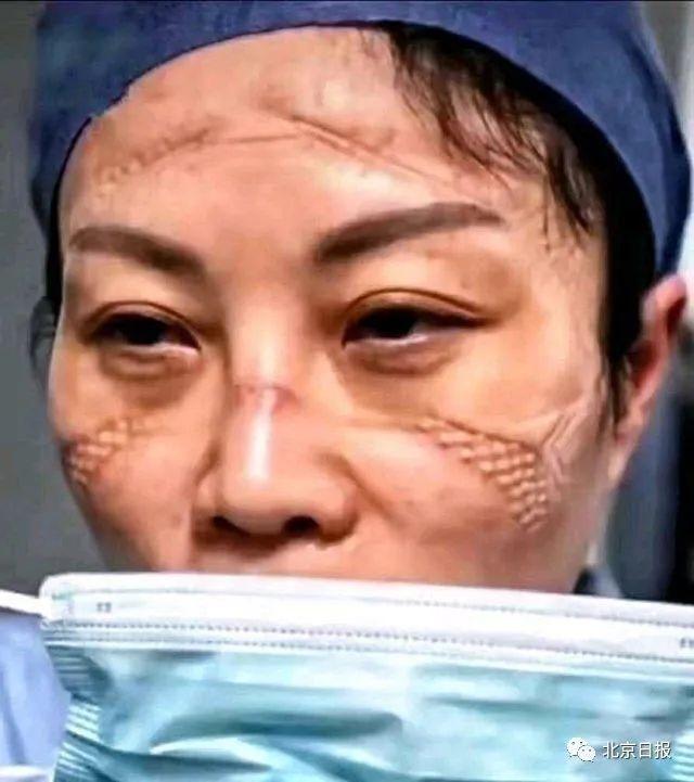 臉上布滿口罩壓痕的醫護人員