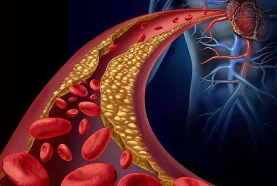 营养师:初春气温波动大,预防心血管疾病,在饮食上注意三件事