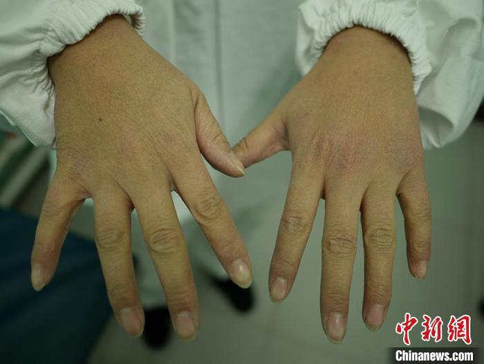 葛丽坤的双手像砂纸一样粗糙 苍雁 摄