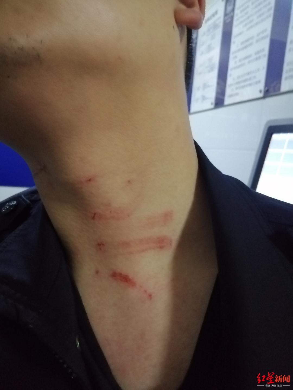 民警脖子被抓伤