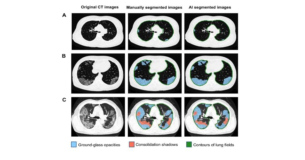 图为人工智能系统在肺病灶分割任务上与人工识别病灶对比图(图源:香港理工大学)